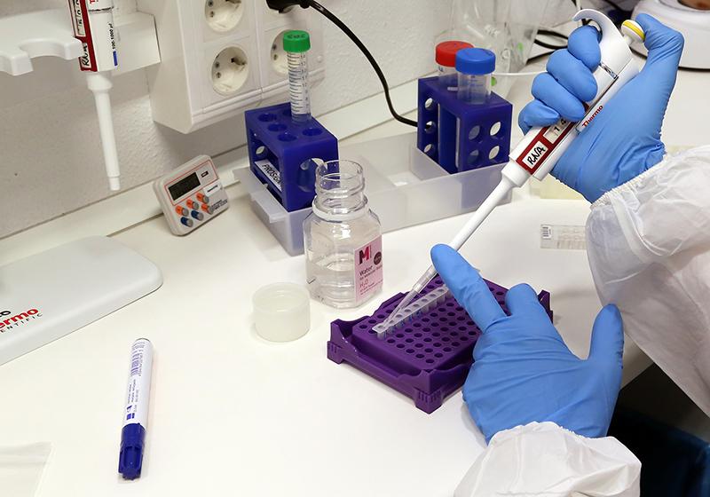 UMA e IBIMA, acreditados para pruebas de diagnóstico de coronavirus